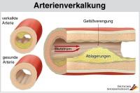 Ablagerungen aus Fett und Kalk können den Durchmesser der Arterien stark verengen. Schließlich kann es zum kompletten Verschluss kommen. Foto: djd   Telcor Arginin-Forschung